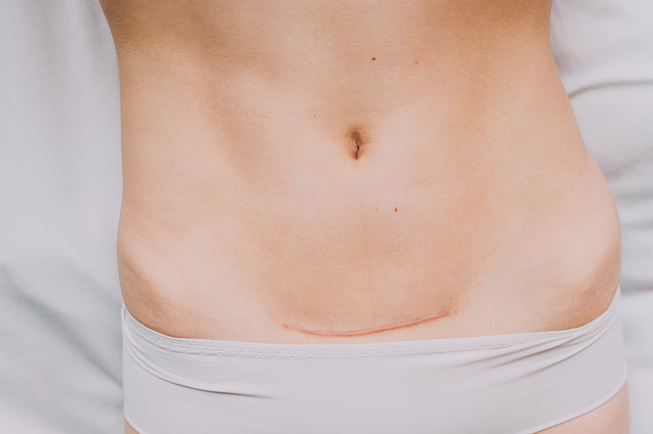 Why We Should Pay Attention To C Section Scars